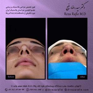 جراحی-بینی-154