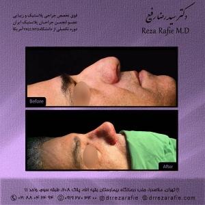 جراحی-بینی-166
