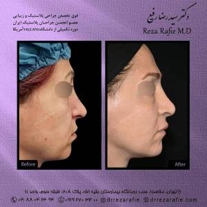 جراحی-بینی-204