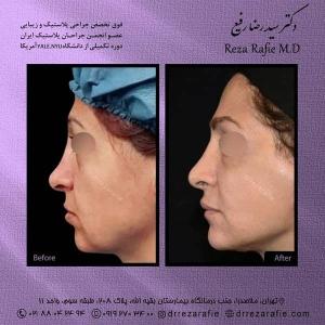 جراحی-بینی-206