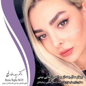 جراحی-بینی-63