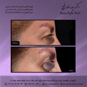 جراحی-پلک-11
