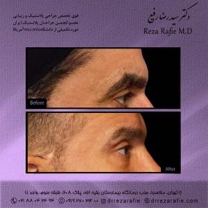 جراحی-پلک-9