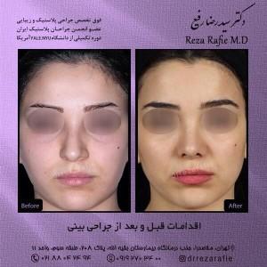 اقدامات قبل و بعد از جراحی بینی